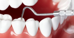 Park City Denstist Providing Dental Crowns