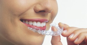Park City Invisalign® provider at Newpark Denstistry